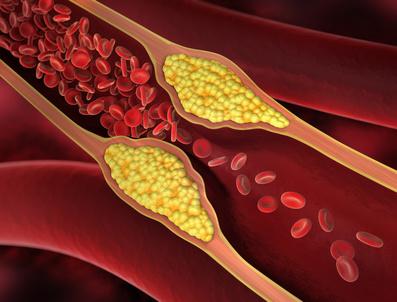 Arterienverkalkung entsteht durch Ablagerungen an den Arterienwänden