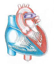 Herzklappenfehler - Aorte - Herzkammer
