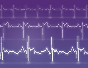 Herzschwäche - Herzinsuffizienz